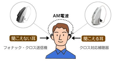 意外と便利なCROS(クロス)補聴システム